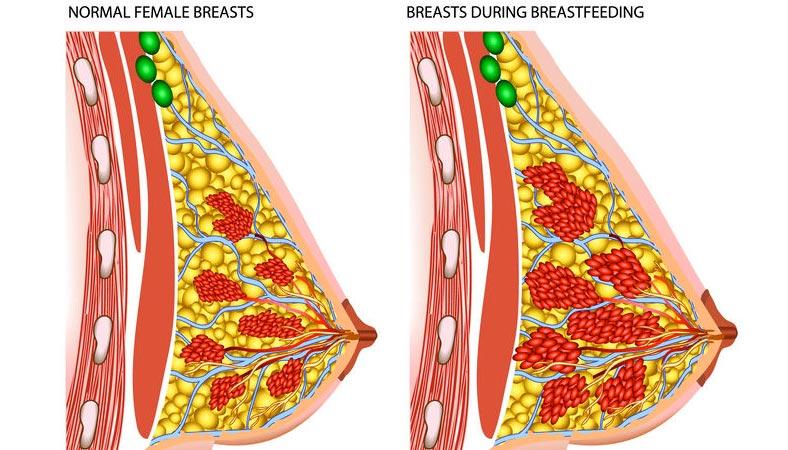 Preservare il seno in gravidanza